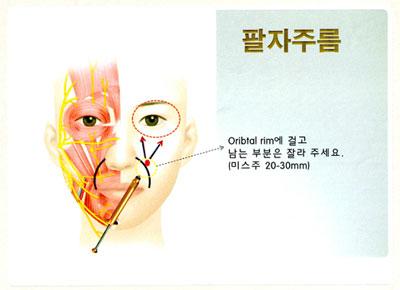 人人時尚美麗診所,人人時尚美麗診所,4D凍齡線misJu,misJu 4D注射式拉皮提顏,4D微針電波拉皮